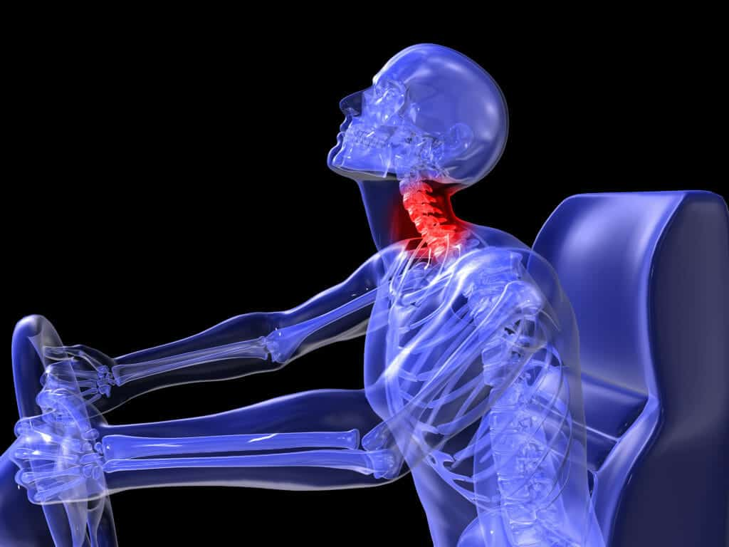 Should I Get A Chiropractic Adjustment After My Car Accident?