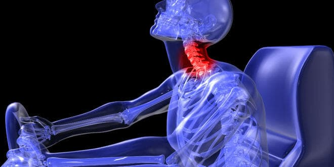 Should I Get Paterson Chiropractic Care After My Car Accident?