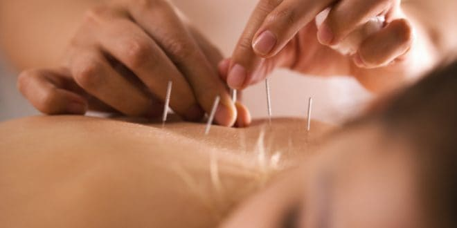 Can Acupuncture Strengthen The Immune System?