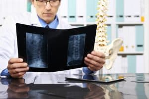 Can Chiropractors Help With SI Joint Dysfunction?