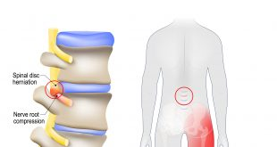 Can Chiropractic Help With Herniated Disc And Sciatica?