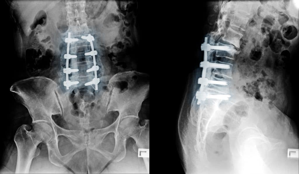 Chiropractic vs Surgery for herniated disc