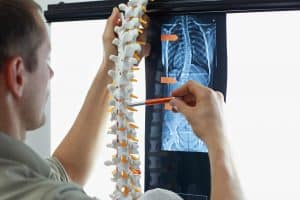 Finding Of Misaligned Spine On X-Ray