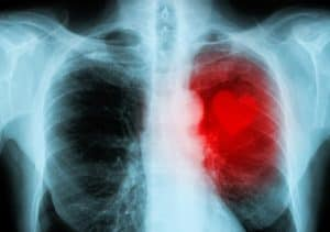 Cancer And Heart Disease